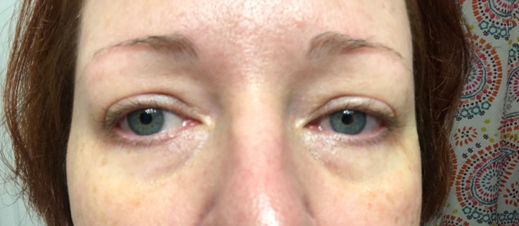 Wrinkles & War Paint, under eye, dark circles, concealer, how to, over 40, eye bags