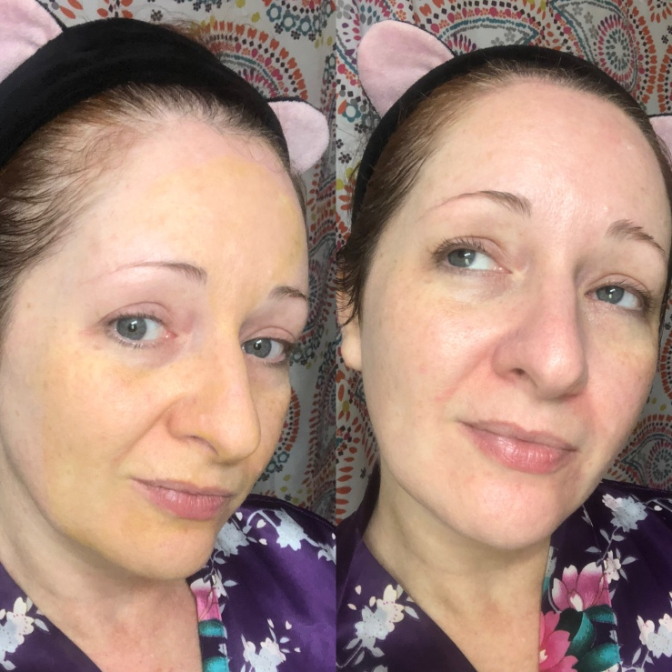 Apto Healing turmeric Face Mask before and after