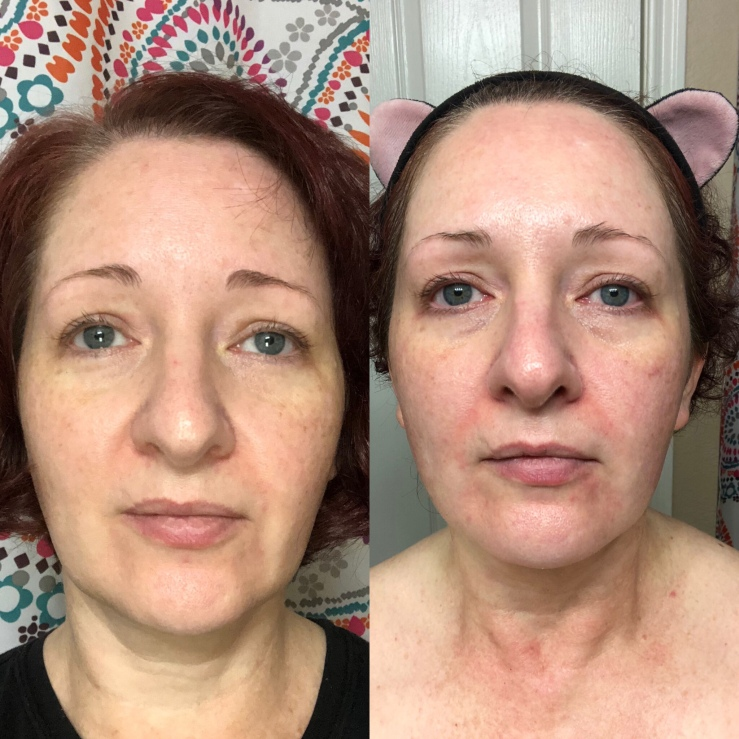 Side-by-side selfies, Differin for wrinkles, skin experiment, front view