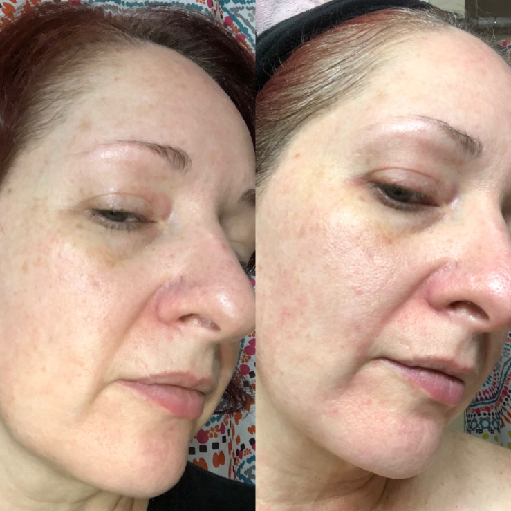 Side-by-side selfies, Differin for wrinkles, skin experiment, right side view
