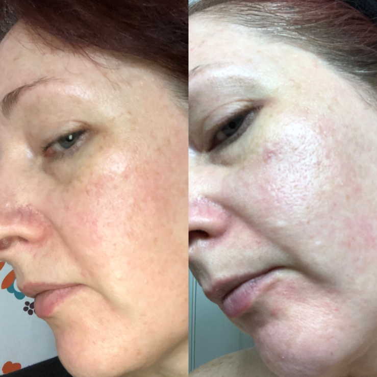 Side-by-side selfies, Differin for wrinkles, skin experiment, left side view